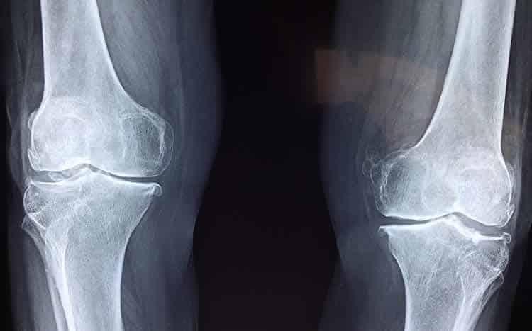 Knee brace for pain